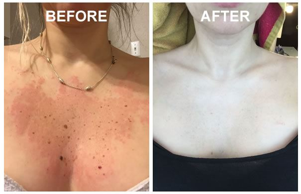 Before And After Of IPL Laser Treatment